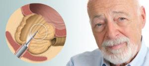 Crecimiento-benigno-de-prostata