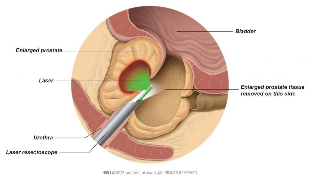 Illustración del funcionamiento del laser en la próstata
