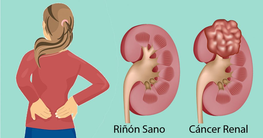 cancer renal